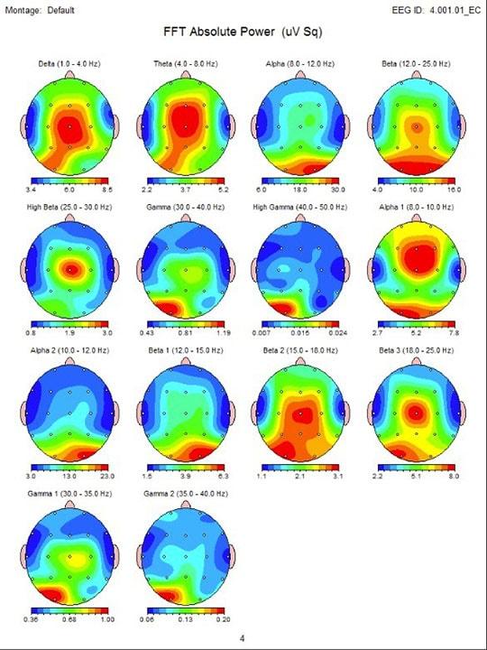 最先端の機器により、細かい脳波解析が可能